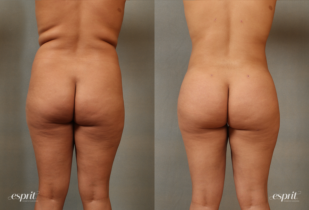 Case 2104 Before and After Rear View