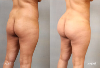 Case 2105 Before and After Rear Oblique View