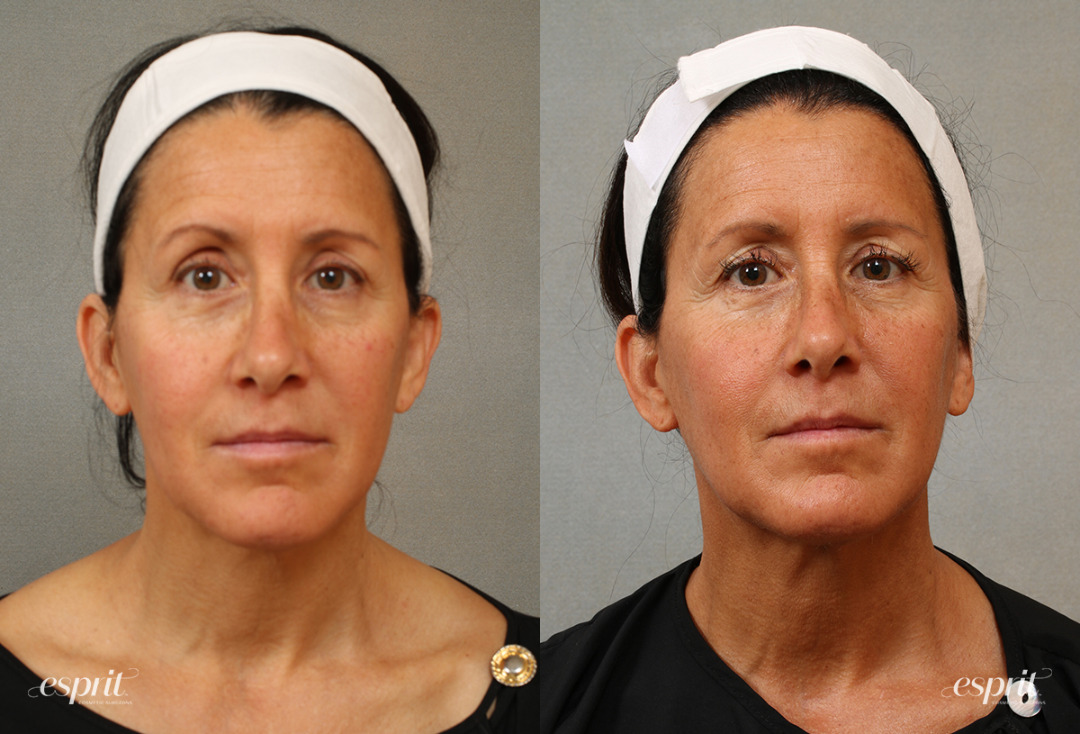 Case 3101 Chin & Neck Contouring Before and After Front View