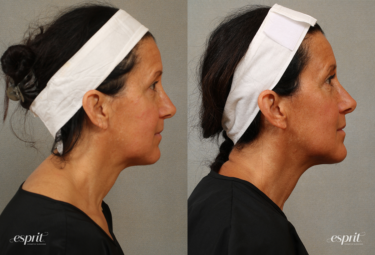 Case 3101 Chin & Neck Contouring Before and After Right Side View