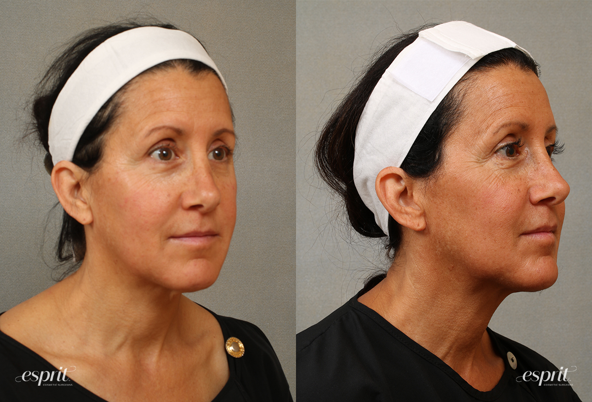 Case 3101 Chin & Neck Contouring Before and After Right Oblique View
