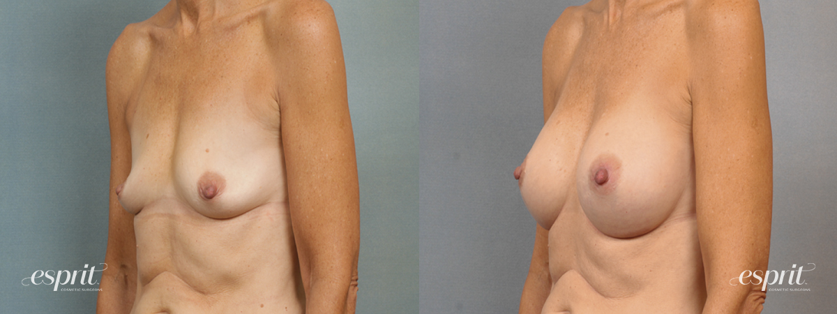 Case 1447 Before and After Left Oblique View
