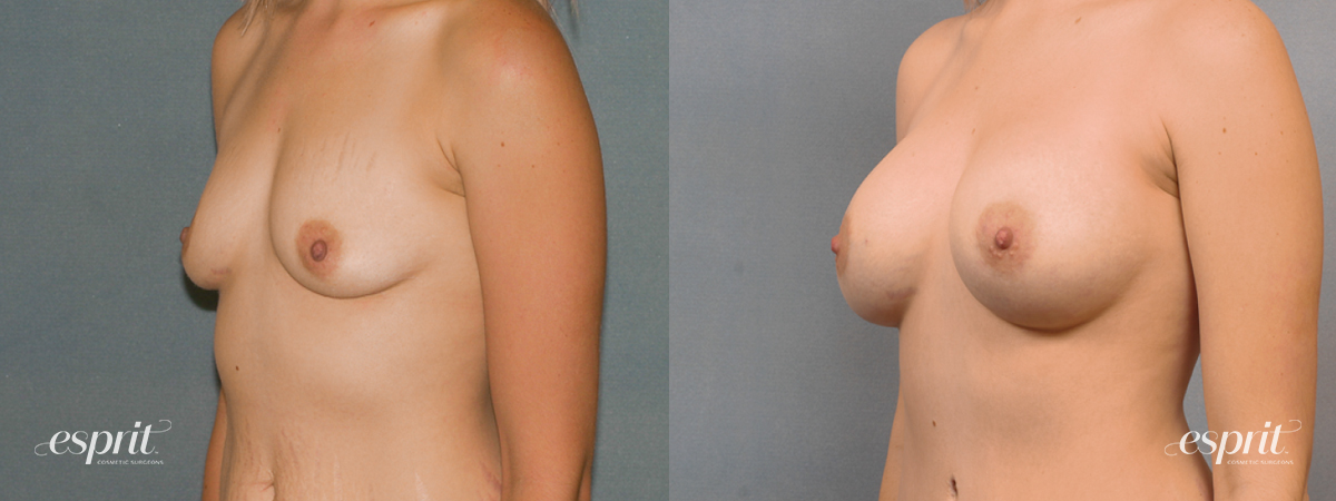 Case 1448 Before and After Left Oblique View