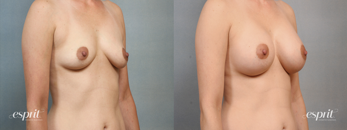 Case 1464 Before and After Right Oblique View
