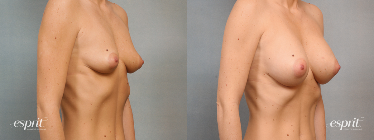 Case 1473 Before and After Right Oblique View