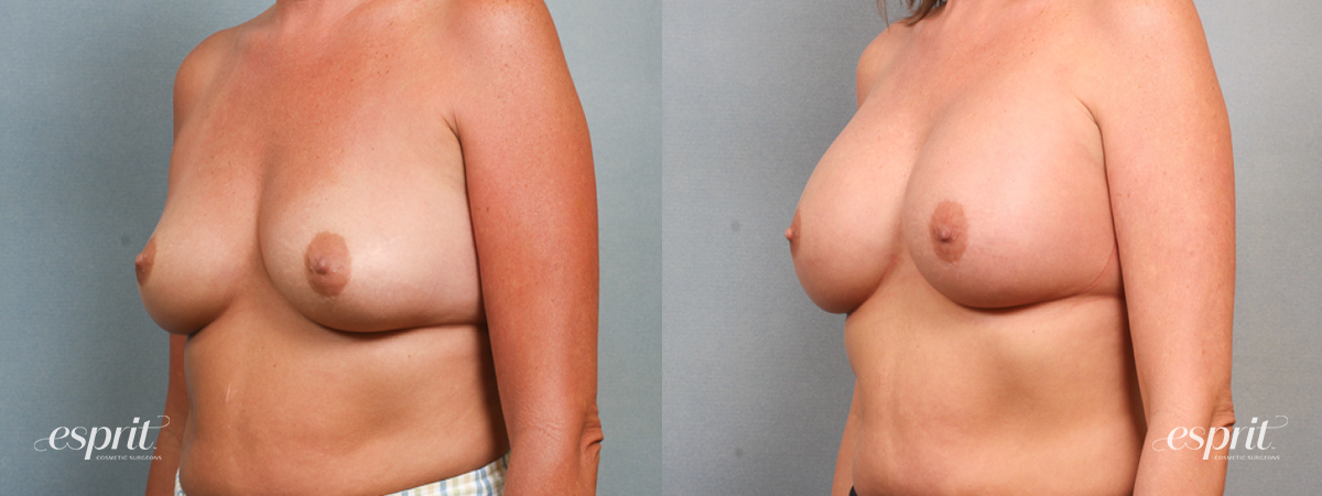 Case 1474 Before and After Left Oblique View