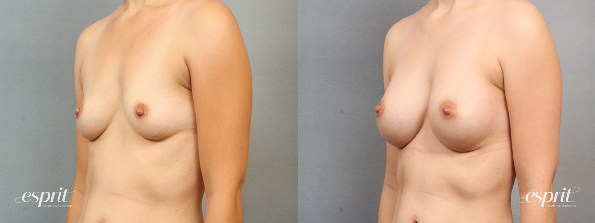 Case 1476 Before and After Left Oblique View