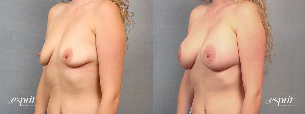 Case 1491 Before and After Left Oblique View