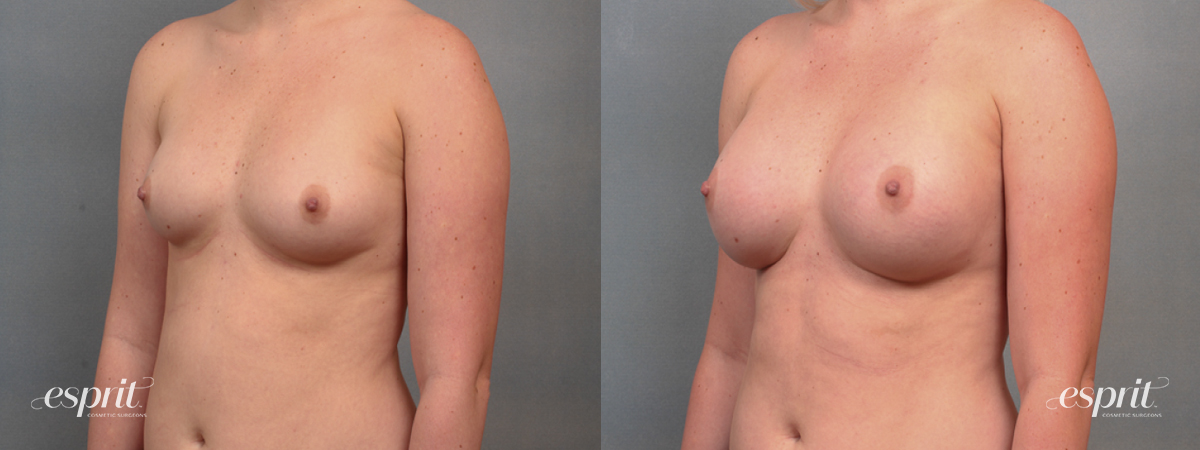 Case 1492 Before and After Left Oblique View
