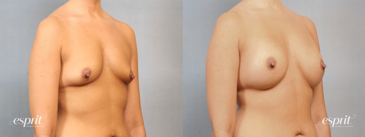 Case 1510 Before and After Right Oblique View