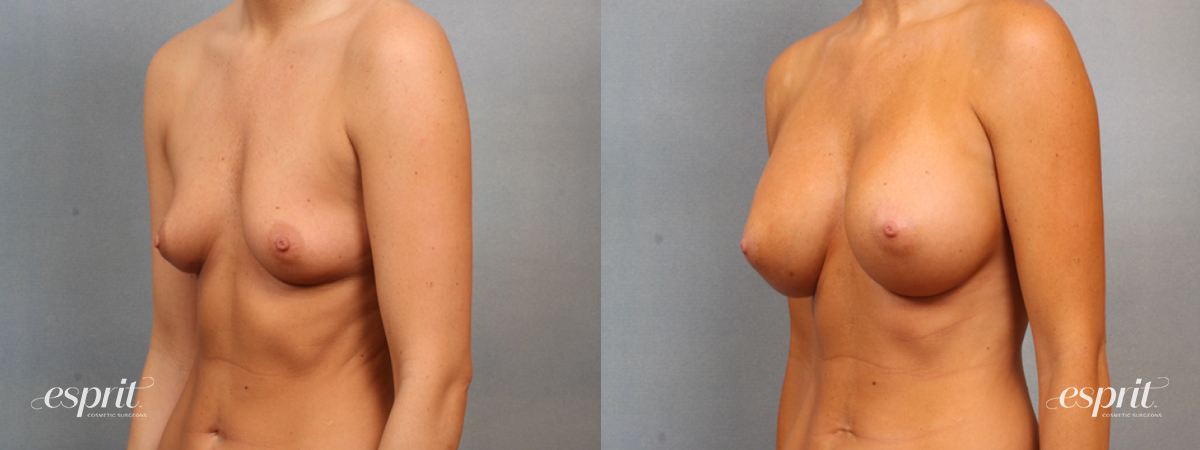 Case 1512 Before and After Left Oblique View