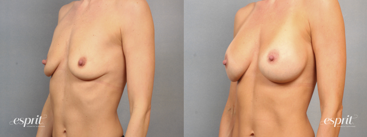 Case 1521 Before and After Left Oblique View