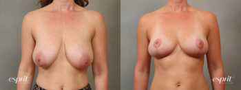Case 1431 Breast Reduction Before and After Front View