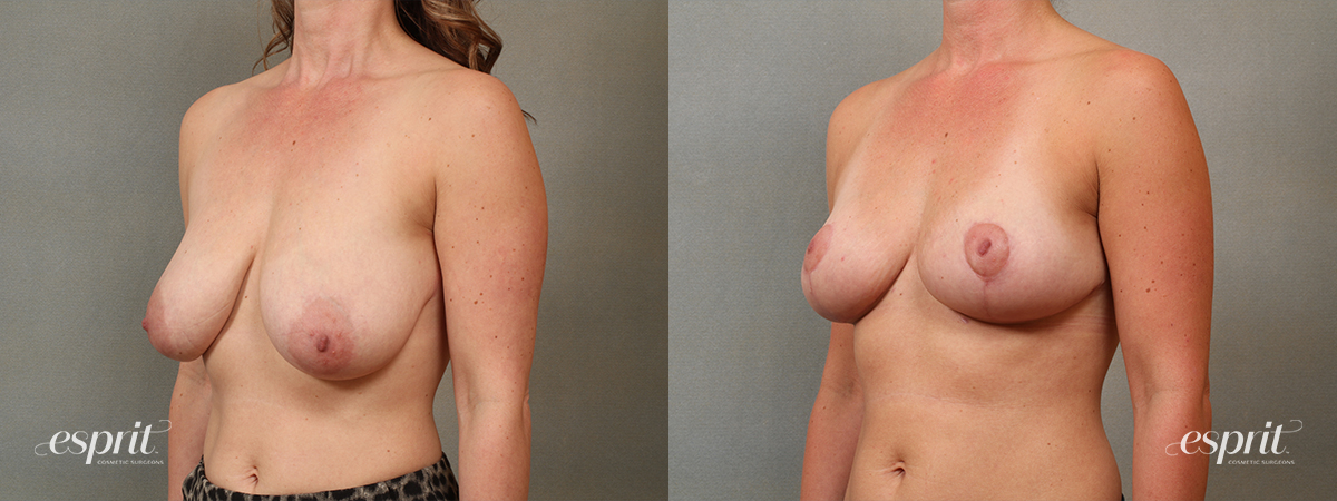 Case 1431 Breast Reduction Before and After Left Oblique View