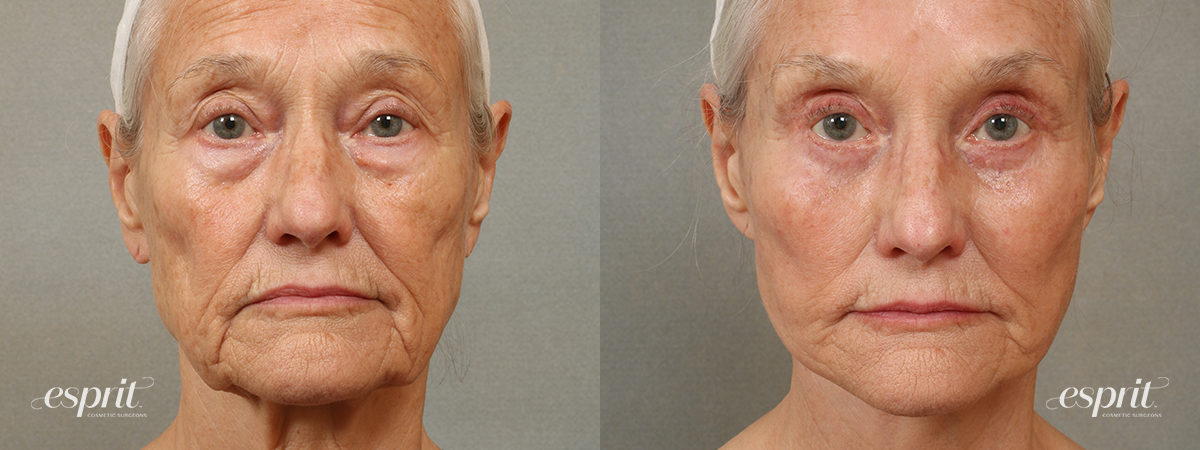 Case 1707 Eyelids Before and After Front View