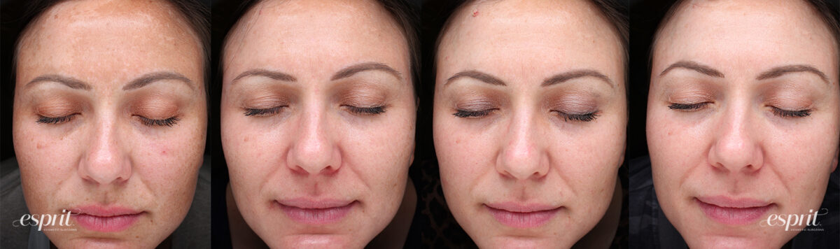 Case 3000 Obagi NuDerm Before and After Collage