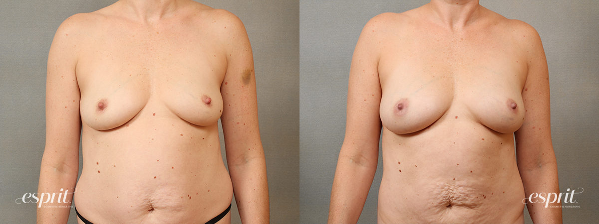 Case 1685 Fat Grafting Before and After Front View