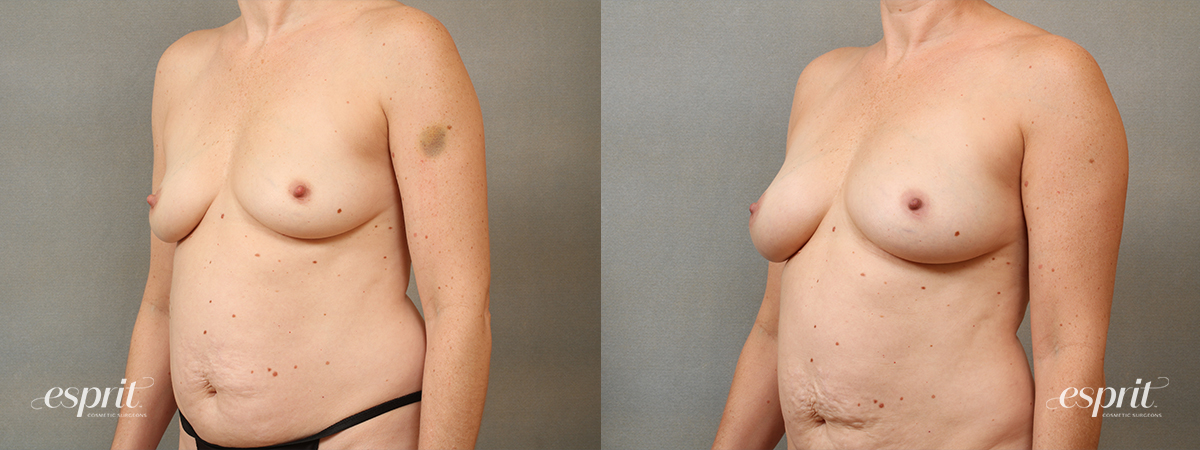 Case 1685 Fat Grafting Before and After Left Oblique View