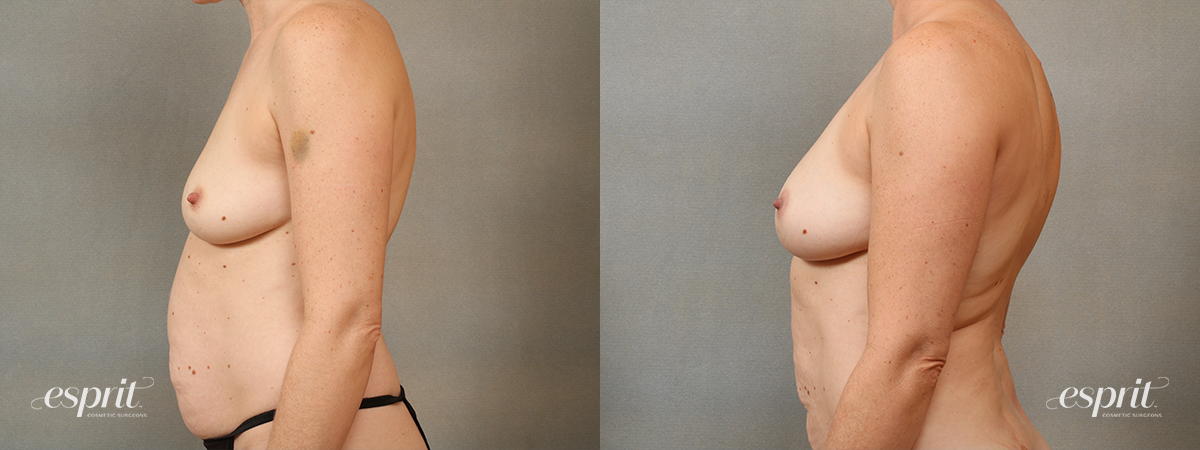 Case 1685 Fat Grafting Before and After Left Side View