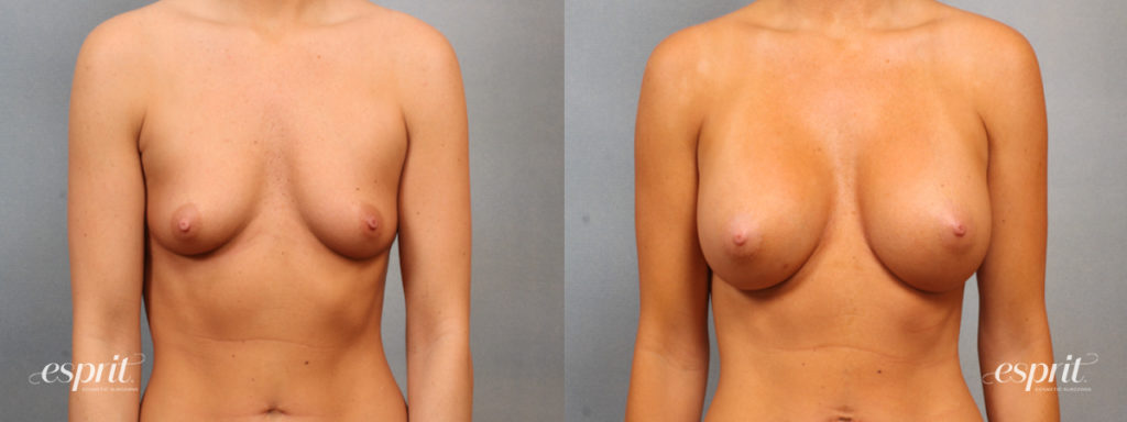 Breast Augmentation Page Slider Patient 1 Before and After Front View