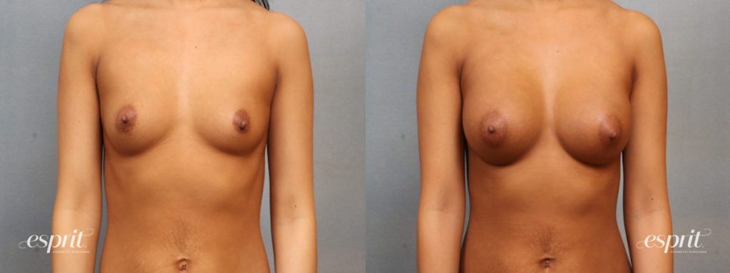 Breast Augmentation Page Slider Patient 3 Before and After Front View