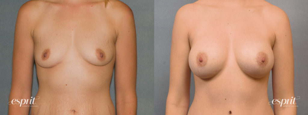 Breast Augmentation Page Slider Patient 2 Before and After Front View