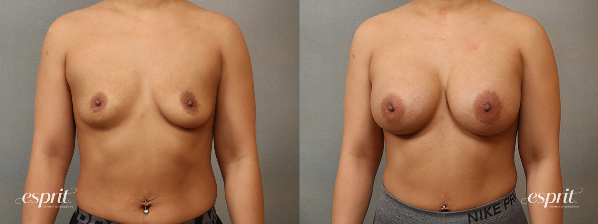 Case 4101 Breast Augmentation Before and After Front View