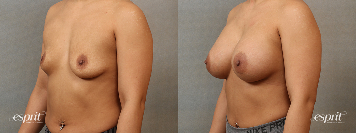 Case 4101 Breast Augmentation Before and After Left Oblique View