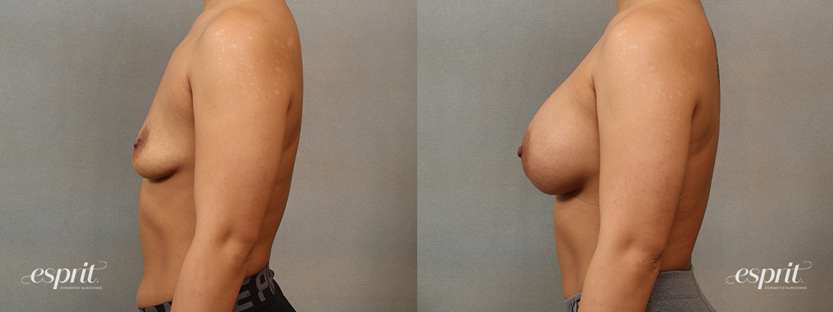 Case 4101 Breast Augmentation Before and After Left Side View