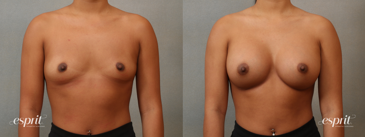 Case 4102 Breast Augmentation Before and After Front View