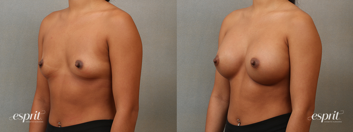Case 4102 Breast Augmentation Before and After Left Oblique View