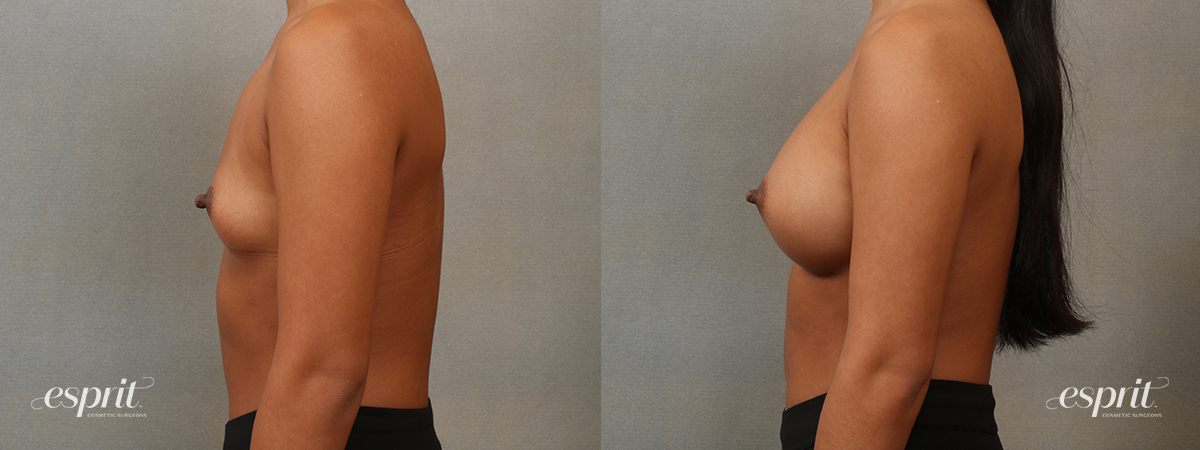 Case 4102 Breast Augmentation Before and After Left Side View