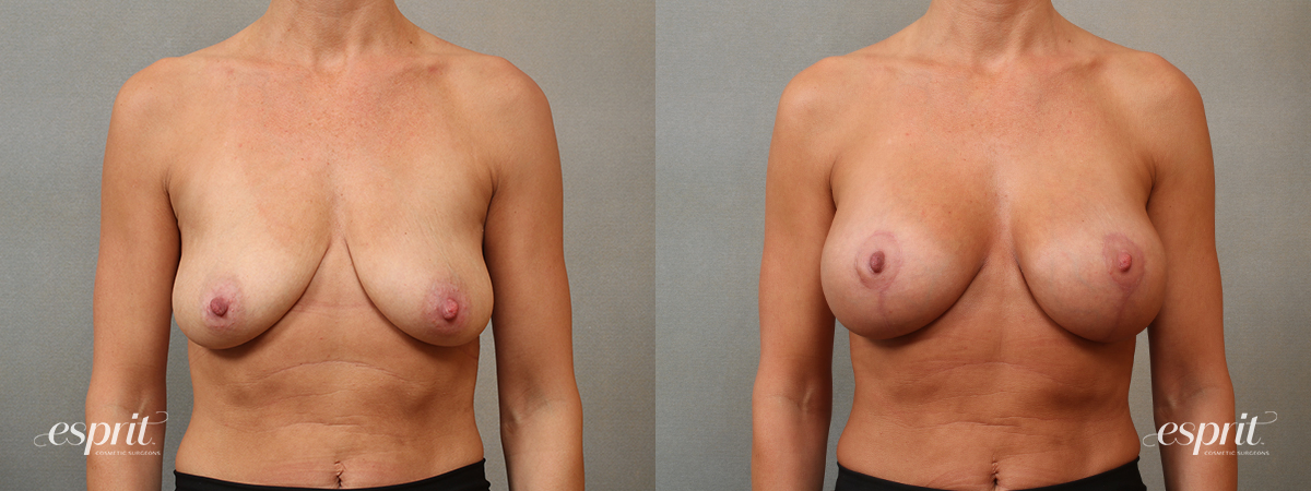 Case 5101 Breast Augmentation & Lift Before and After Front View