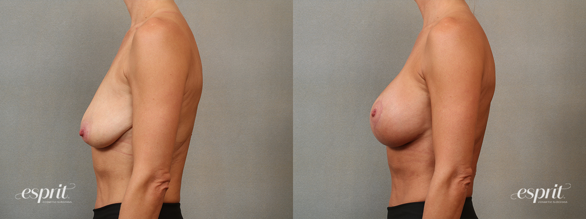 Case 5101 Breast Augmentation & Lift Before and After Left Side View