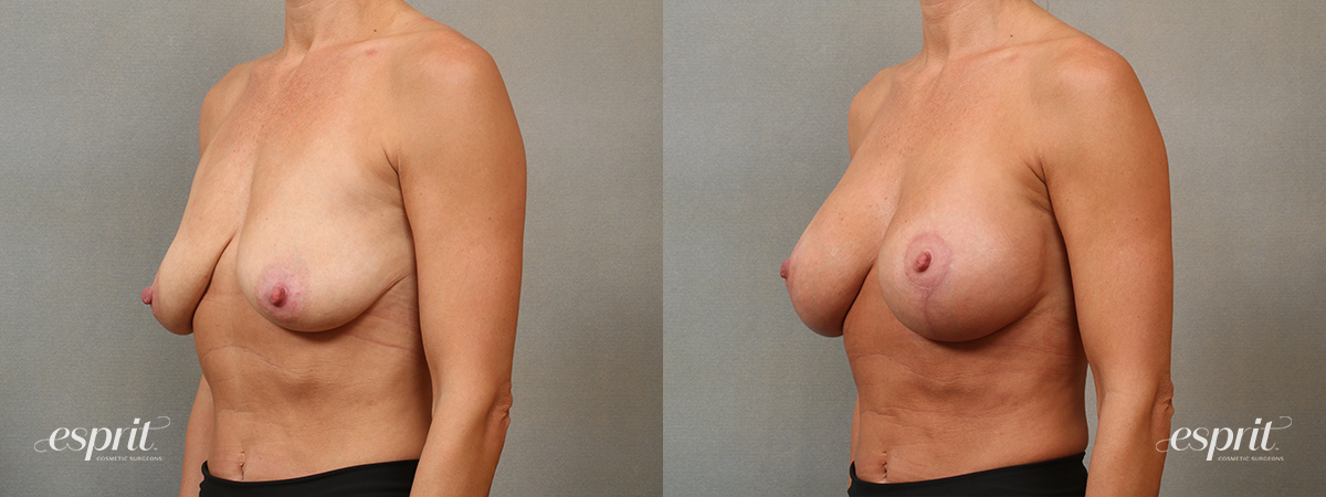 Case 5101 Breast Augmentation & Lift Before and After Left Oblique View