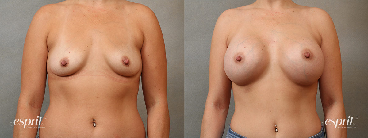 Case 4103 Breast Augmentation Before and After Front View