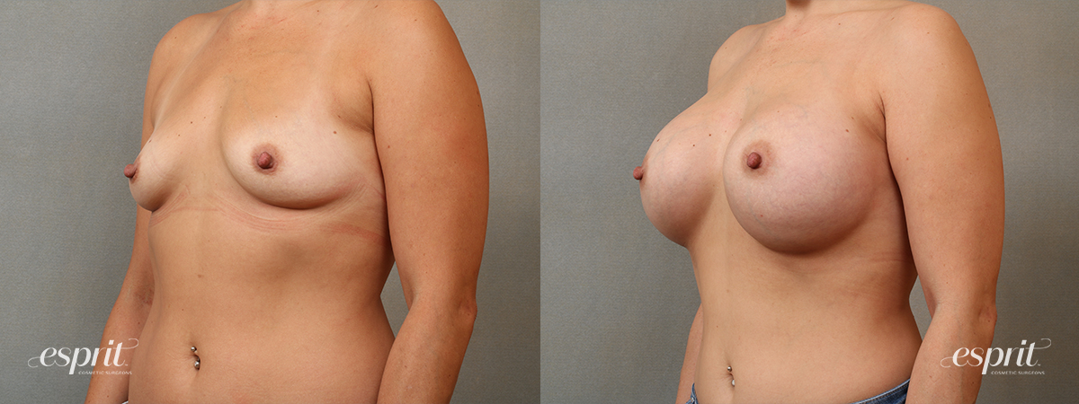 Case 4103 Breast Augmentation Before and After Left Oblique View