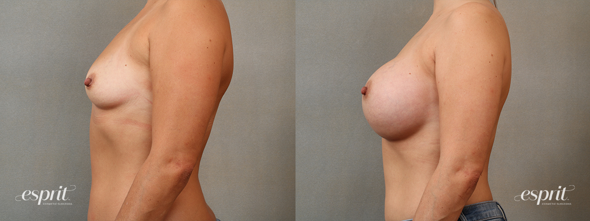Case 4103 Breast Augmentation Before and After Left Side View