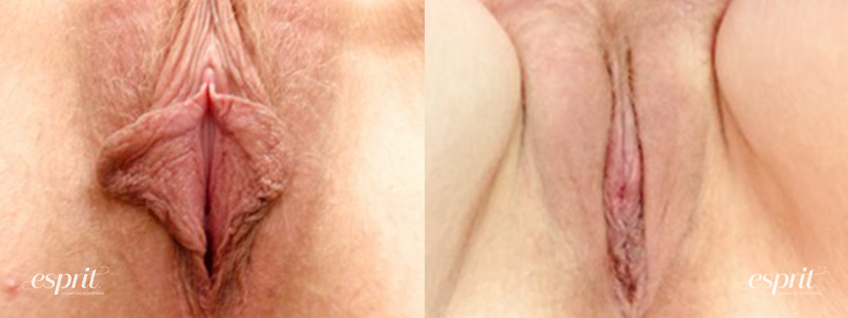 Patient 5 Labiaplasty Before and After