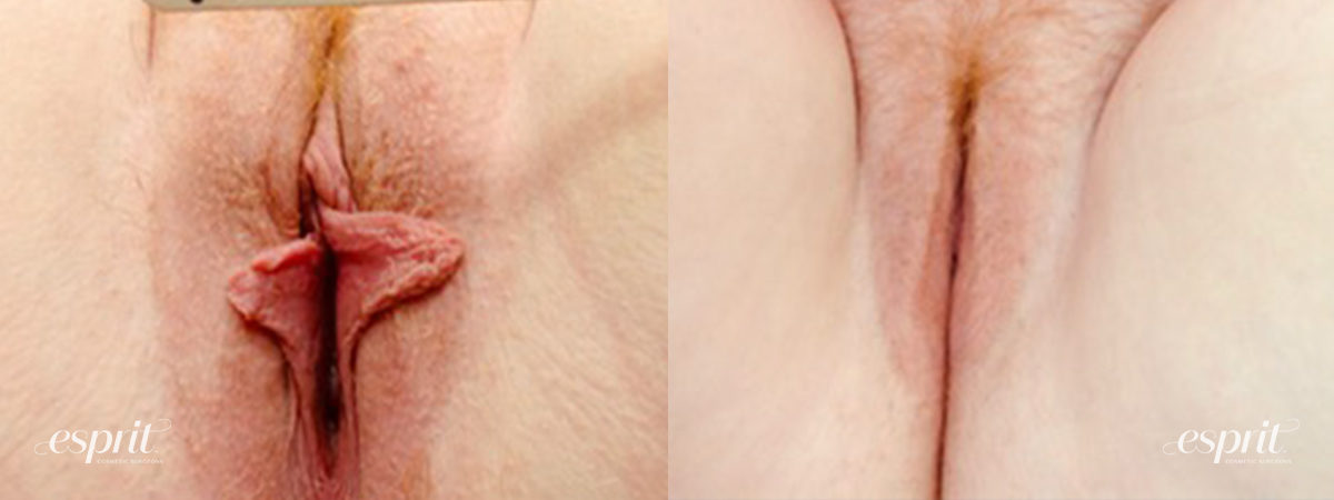 Patient 4 Labiaplasty Before and After