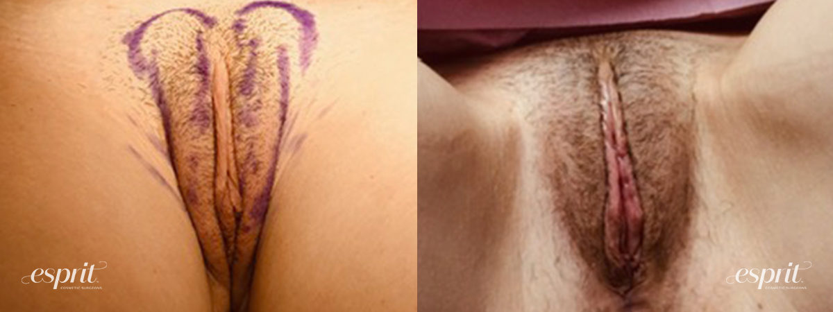 Patient 5 Vaginoplasty Before and After