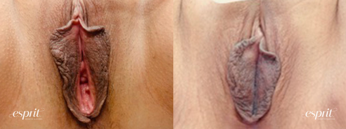 Patient 2 Perineoplasty Before and After