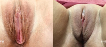 Patient 1 Perineoplasty Before and After