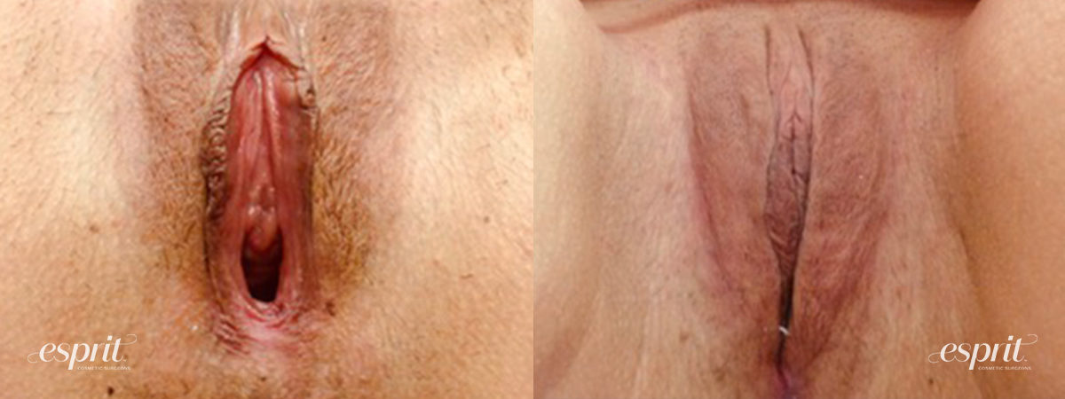 Patient 4 Vaginoplasty Before and After