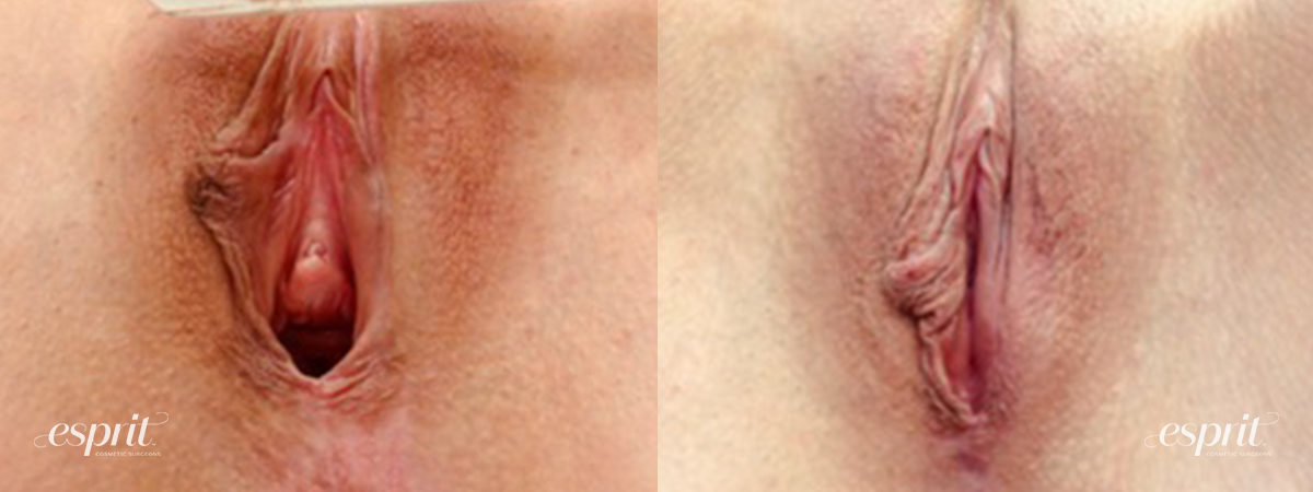 Patient 3 Vaginoplasty Before and After
