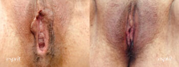 Patient 2 Vaginoplasty Before and After