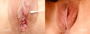 Patient 1 Vaginoplasty Before and After