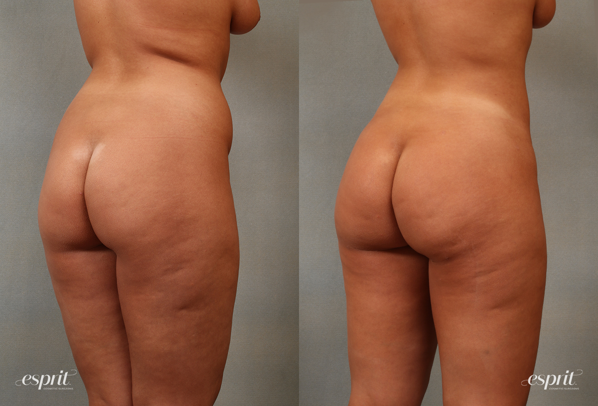 Case 2107 Before and After Rear Oblique View