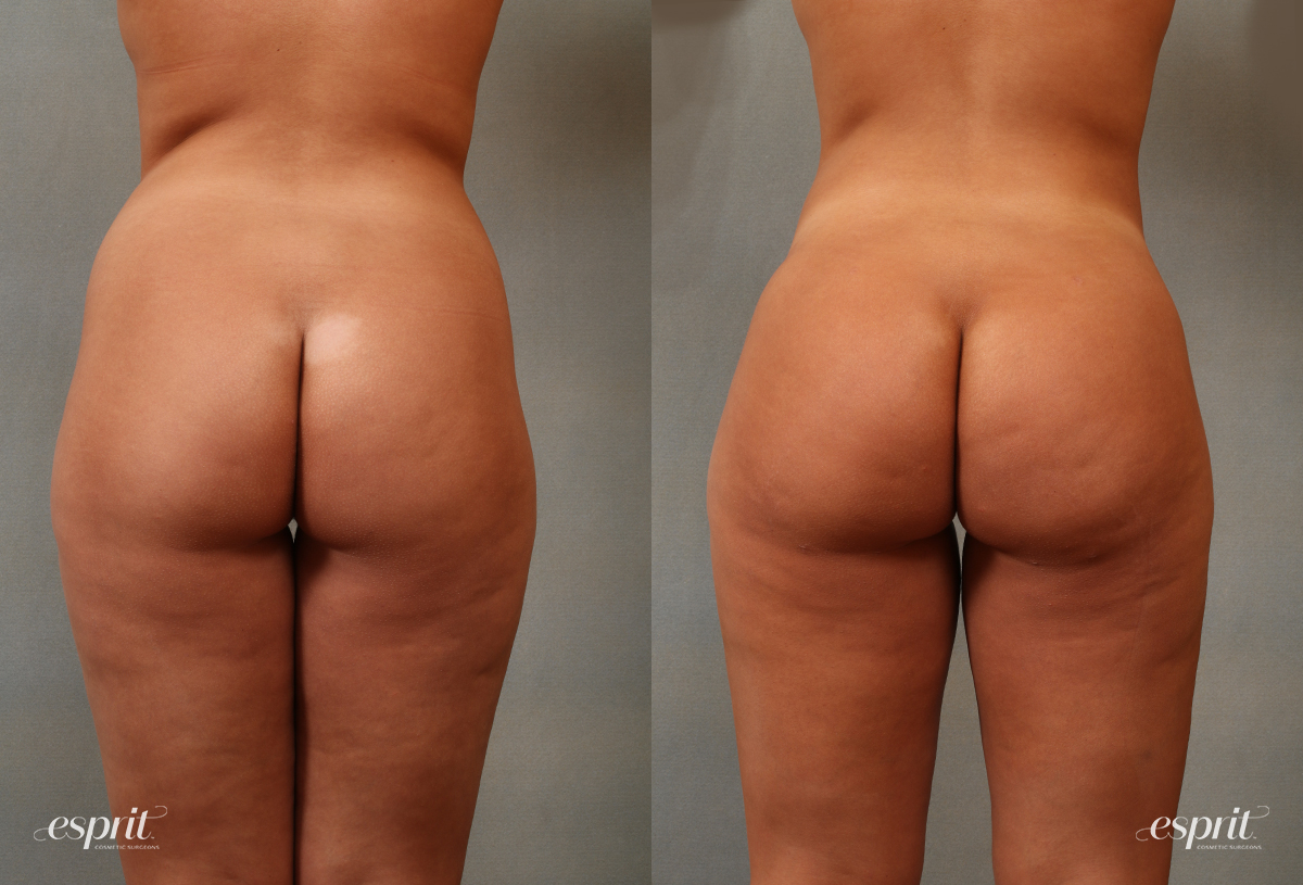 Case 2107 Before and After Rear View
