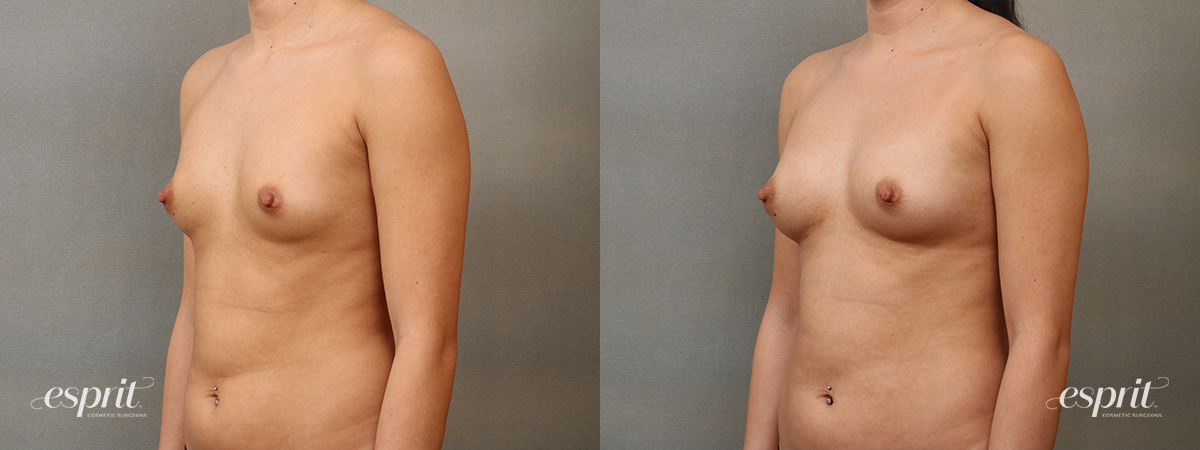 Case 2201 Before and After Left Oblique View